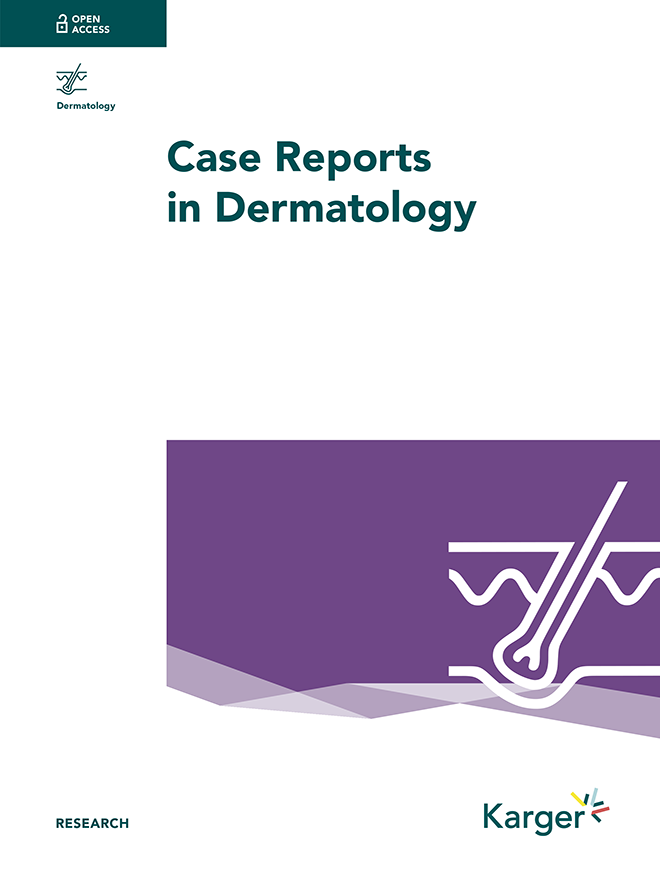Case Reports in Dermatology - Home - Karger Publishers
