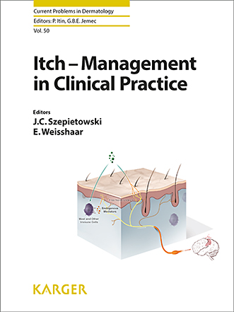 Itch Management: Systemic Agents - FullText - Itch